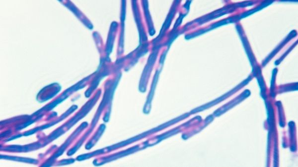 Bakterie antraxu (Bacillus anthracis)